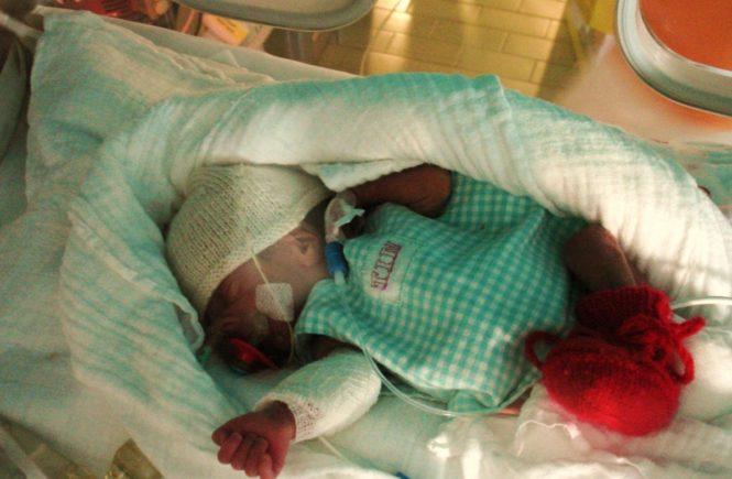 """dsc00869 665x435 - Gastbeitrag zum Welt-Frühgeborenen-Tag: """"Mein Sohn wog bei der Geburt gerade mal 900 Gramm"""" -"""
