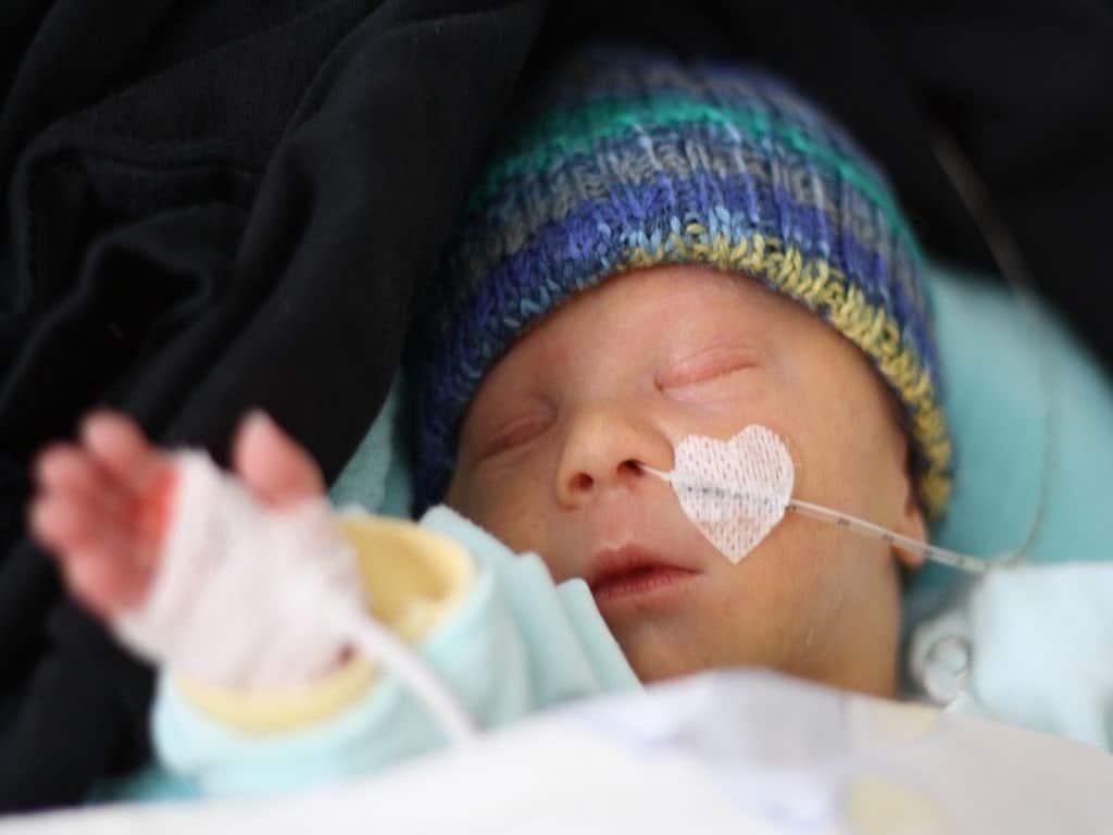 trisomie 21 diabetes bebé anzeichen