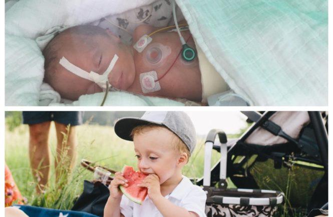 eliasaufmacher 665x435 - Frühchen-Serie, Folge 3: Sofort nach seiner Geburt wurde Elias fünf Stunden operiert -