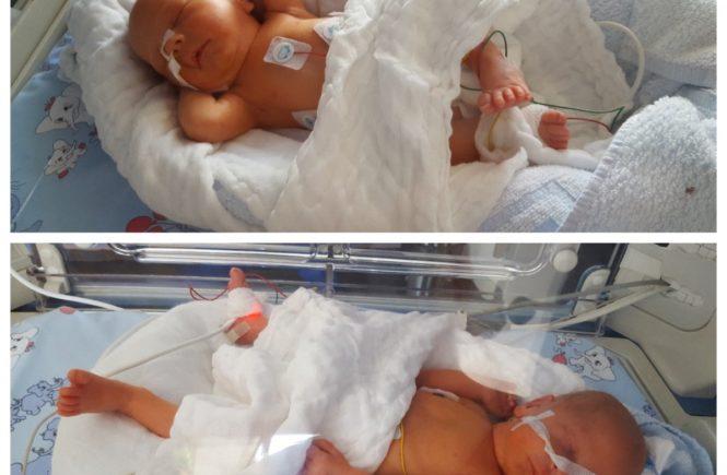 zwi 665x435 - Frühchen-Serie, Folge 2: Diese Zwillinge kamen sechs Wochen zu früh zur Welt -