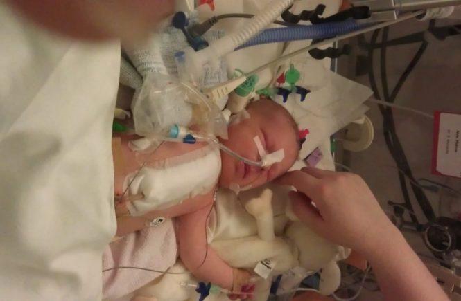 neele1 665x435 - Operationen statt Kuscheln - unsere Tochter kam schwerkrank zur Welt -